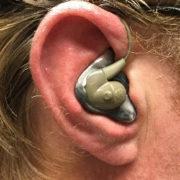 Silynx Custom Fit Ear Molds 2
