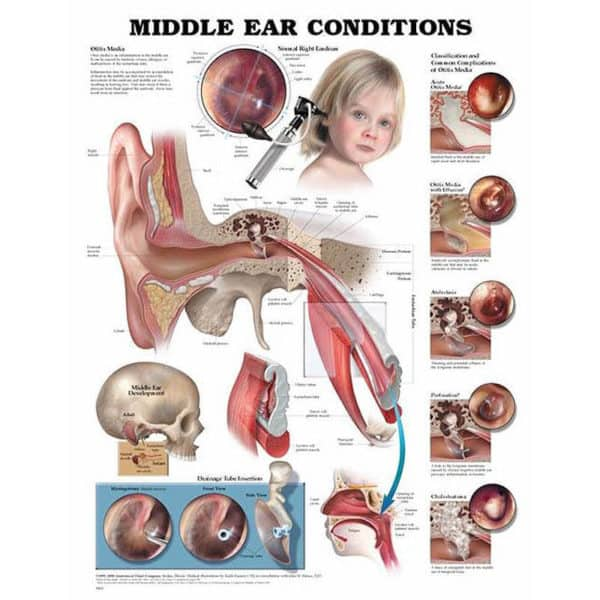 Middle Ear Conditions Chart