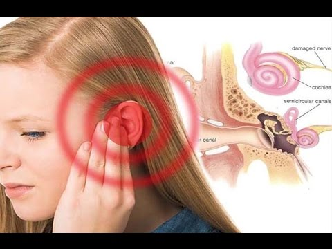 How Hearing Loss Happens Ear Diagram